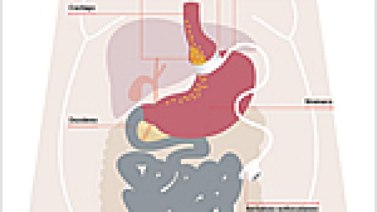 Il bendaggio gastrico regolabile
