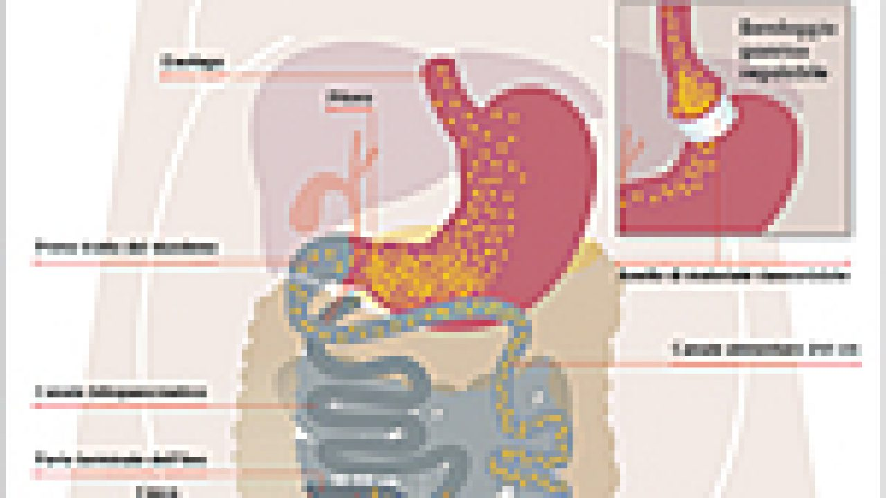 Diversione biliopancreatica con conservazione dello stomaco