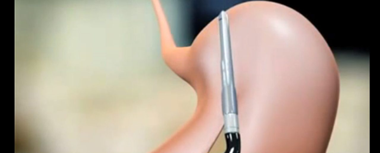 La chirurgia bariatrica può migliorare la funzione renale