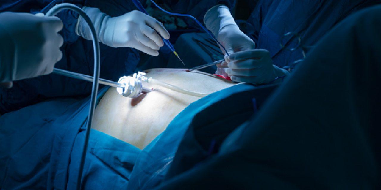 La chirurgia bariatrica malassorbitiva riduce l'incidenza di nuove malattie e migliora l'aspettativa di vita